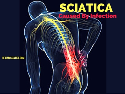 """sciatica caused by infection"""